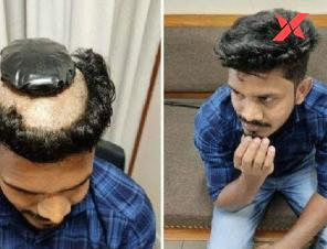 Kerala man shaves his hair to smuggle 1kg gold under his wig, caught